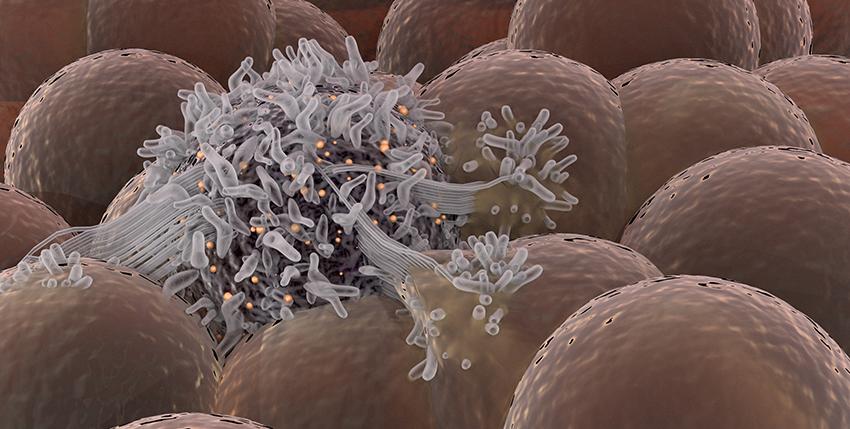 Original Error – When does a cancer first arise? Sahand Hormoz